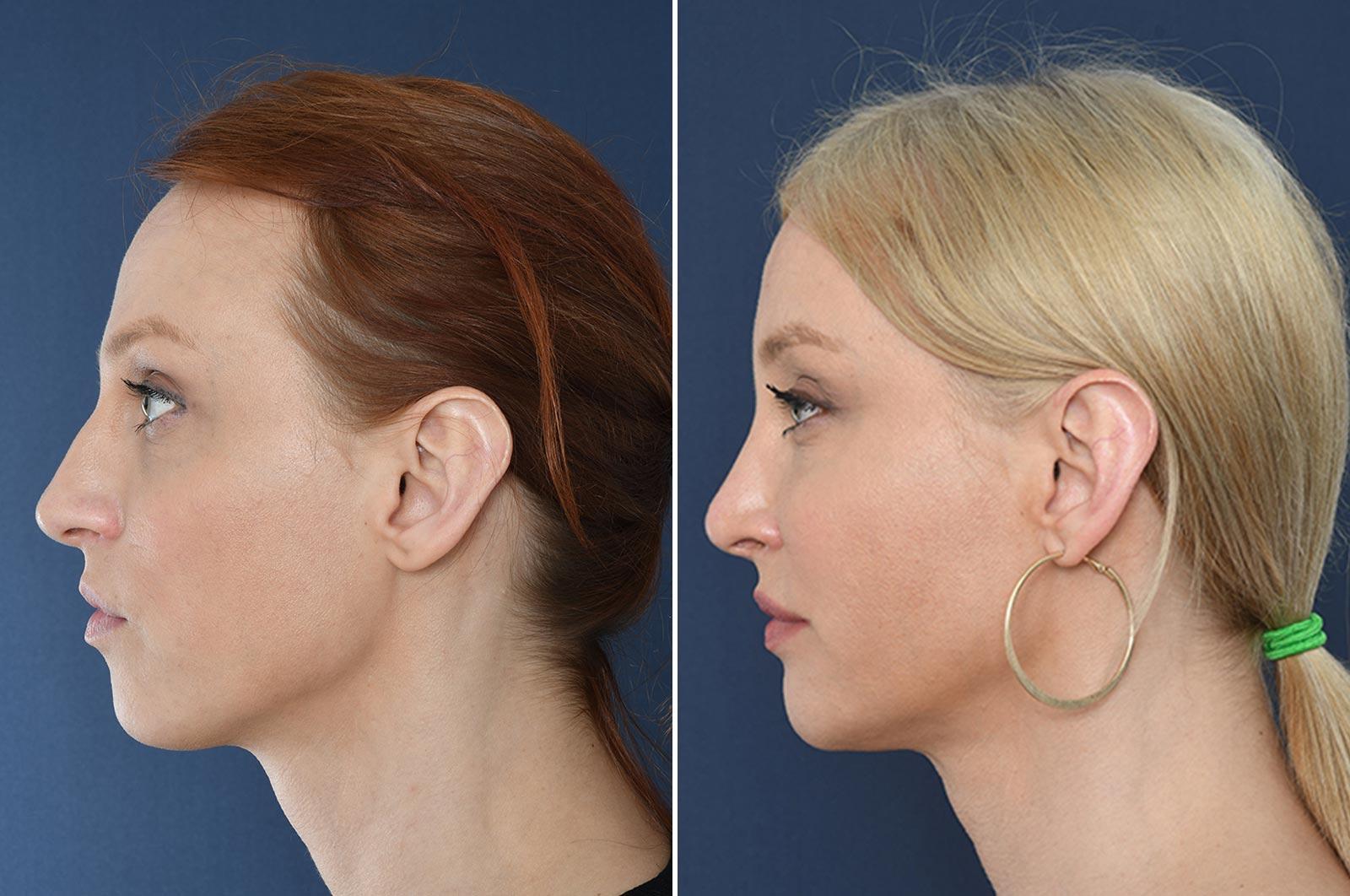 o2-clinic-5-tips-als-u-een-neuscorrectie-overweegt-voor-en-na
