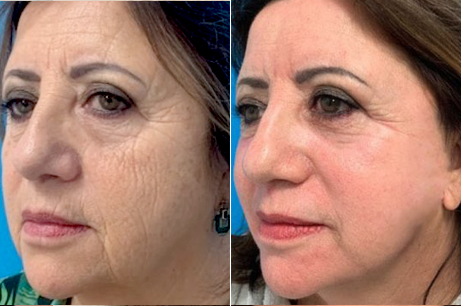 Facial surgery chemical peel before and after treatment in antwerp