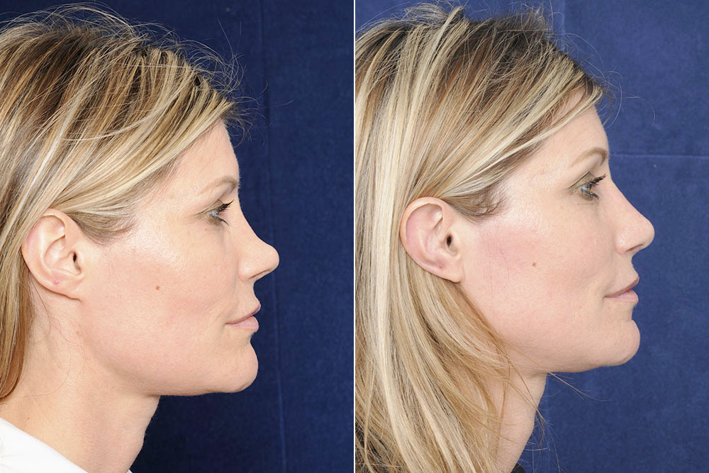 Before and after side by side photo of a woman after a nose correction or rhinoplasty