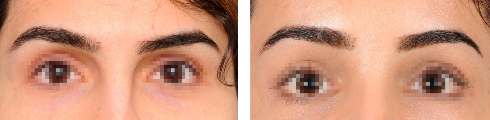 Before and after picture (frontal comparison) of a woman after an eyebrow lift.