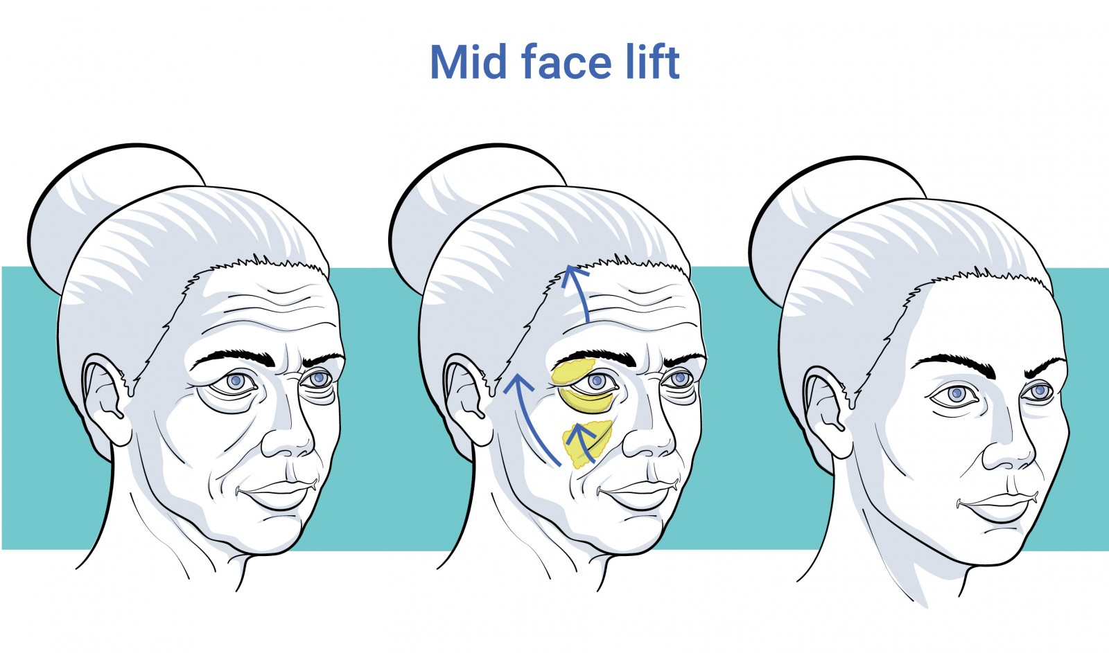 Facial surgery midfacelift before and after treatment in Antwerp
