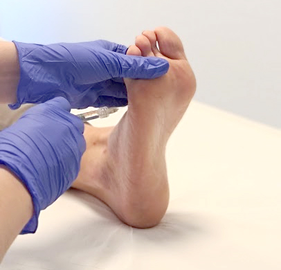 Injectables botox spierontspanners hyperhidrose zweetvoeten behandeling antwerpen