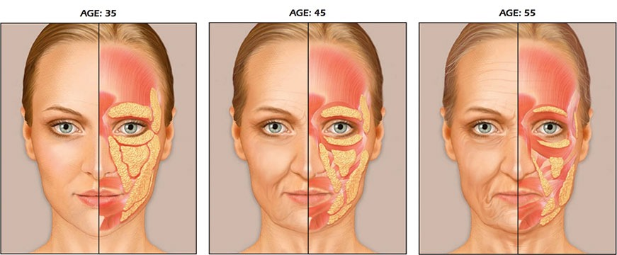 A sketch of the fatty tissue in the face, depending on your age.