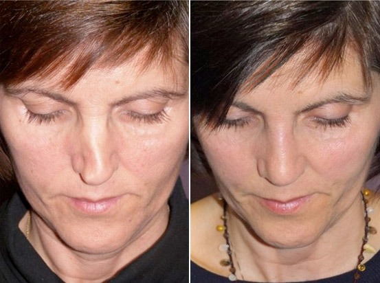 Before and after photo (frontal comparison) of a woman after a nose correction or rhinoplasty.