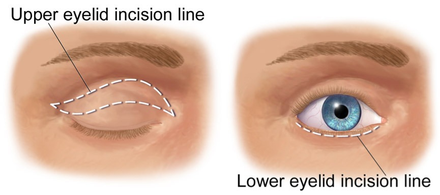 A sketch of the incision lines during a blepharoplasty or eyelid correction.