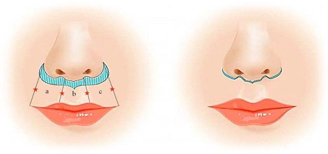 A sketch of a lip lift procedure.