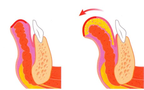 A sketch of lipofilling using a fat injection to enhance the lower lip..