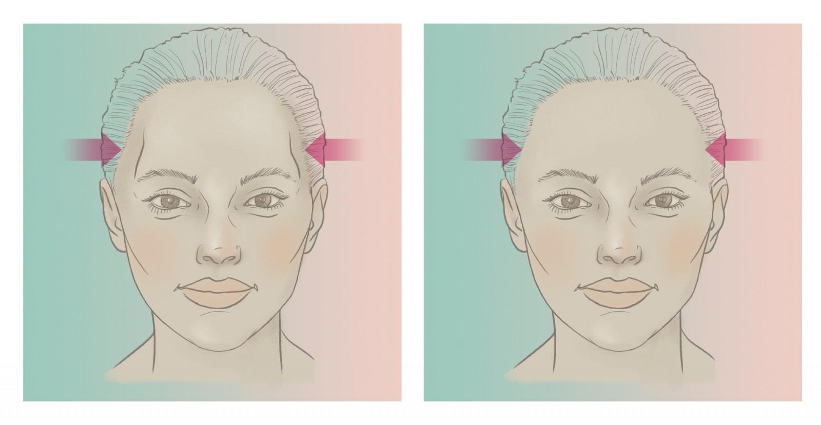 Temporele PEEK implantaten voor en na