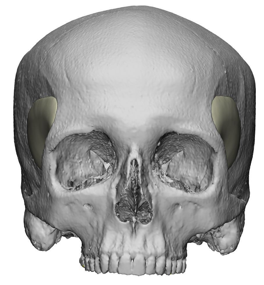 Temporele PEEK implantaten op een 3D scan
