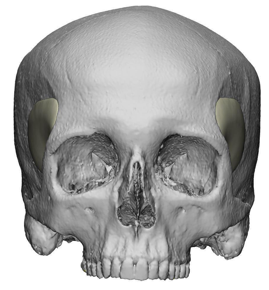 Temporal peek implants