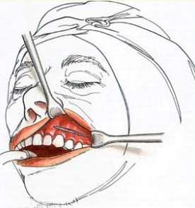 A sketch of the incision area when inserting Medpor implants.