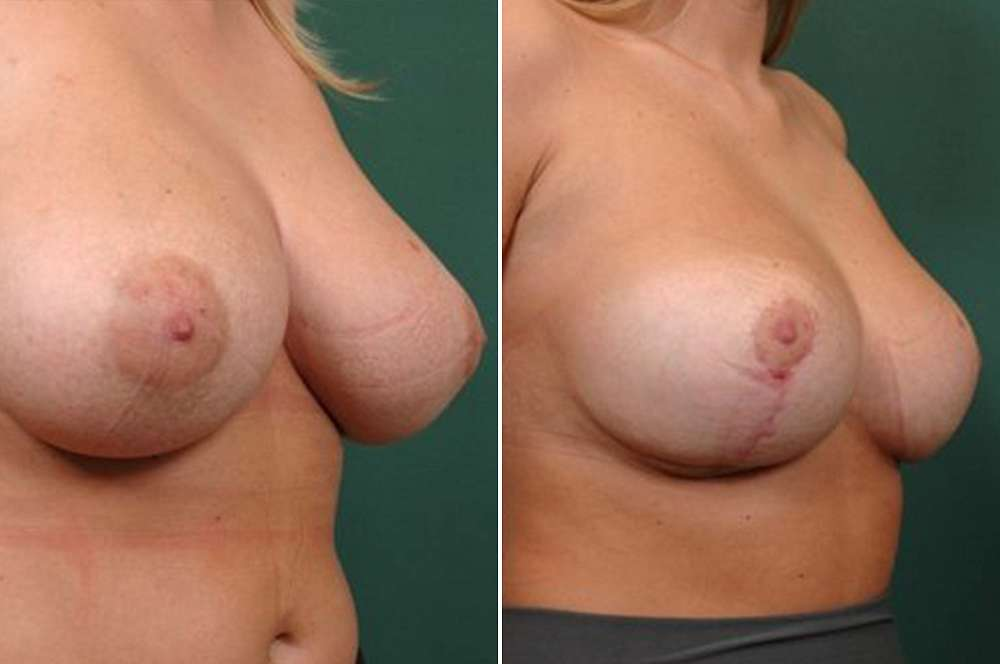 Breast Reduction - Body surgery