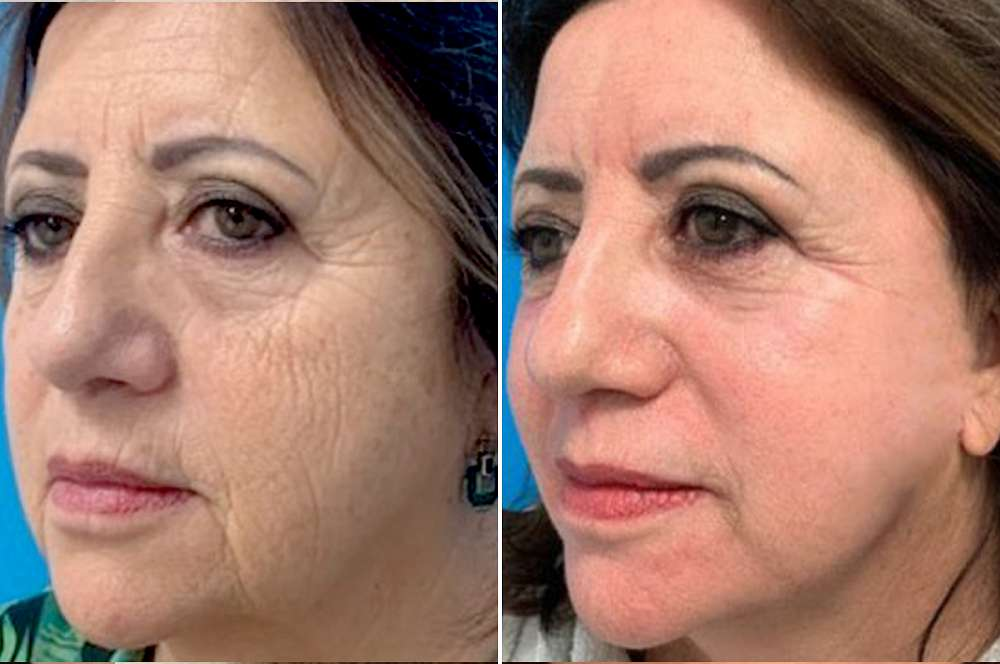 Chemical peel - Facial surgery