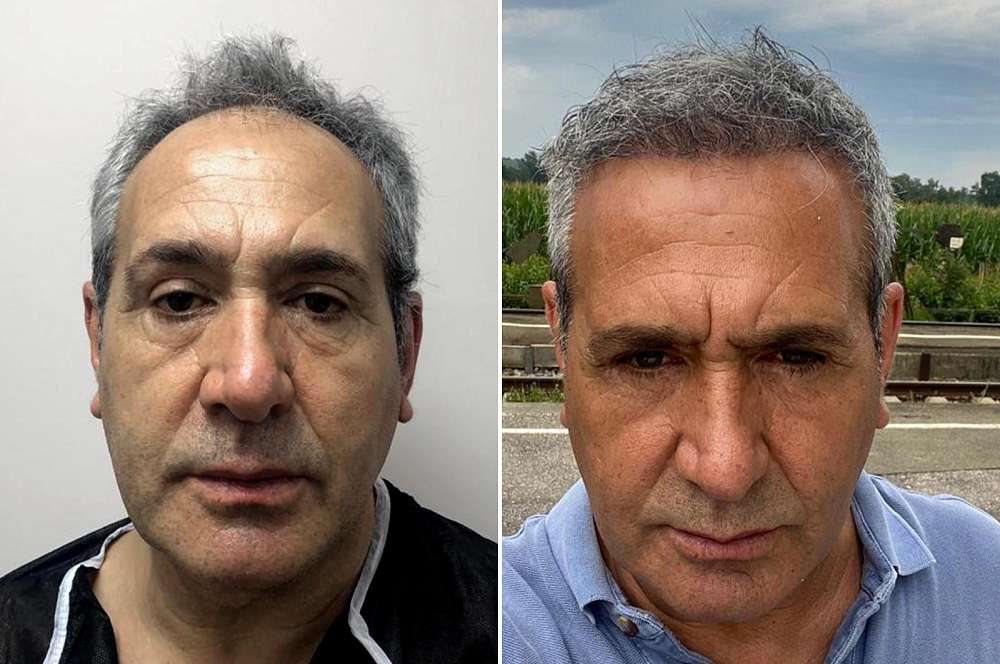 Hair transplant - Hair surgery