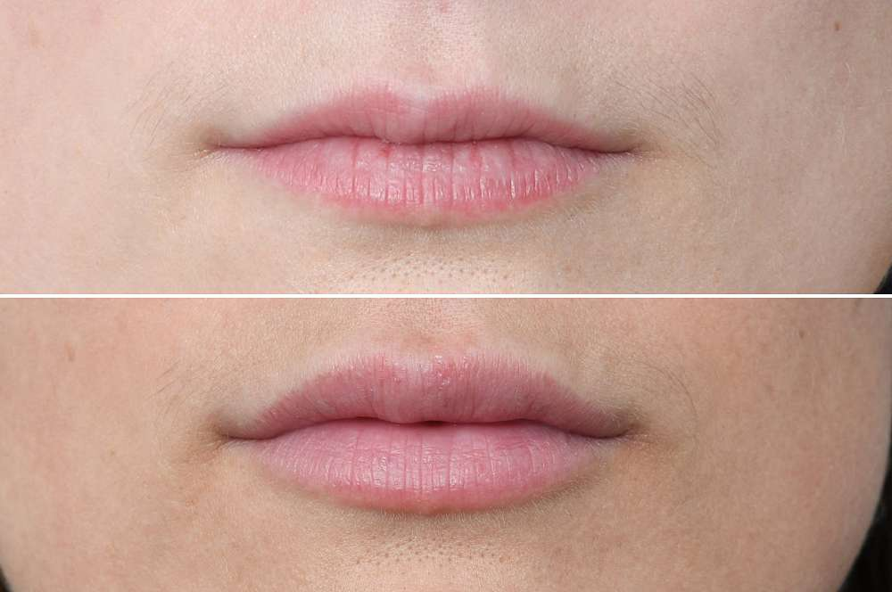 Lip fillers - Injectables