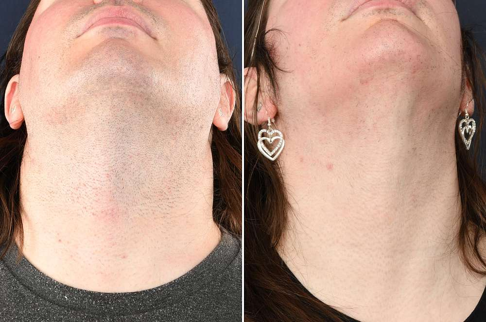 Laser and electrolysis - Hair removal
