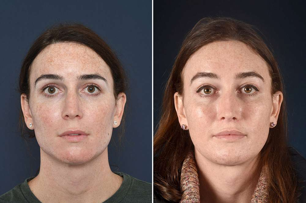 Facial surgery - Facial surgery