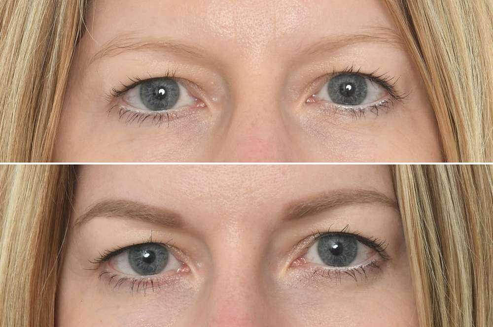 Permanent make-up - Beauty treatments