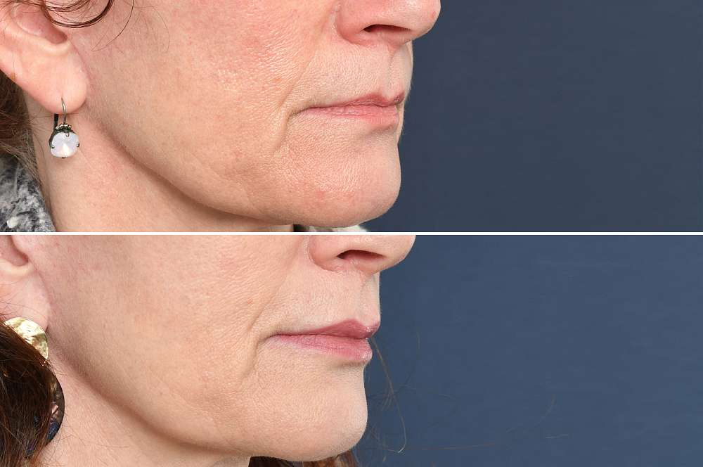 Fillers - Injectables
