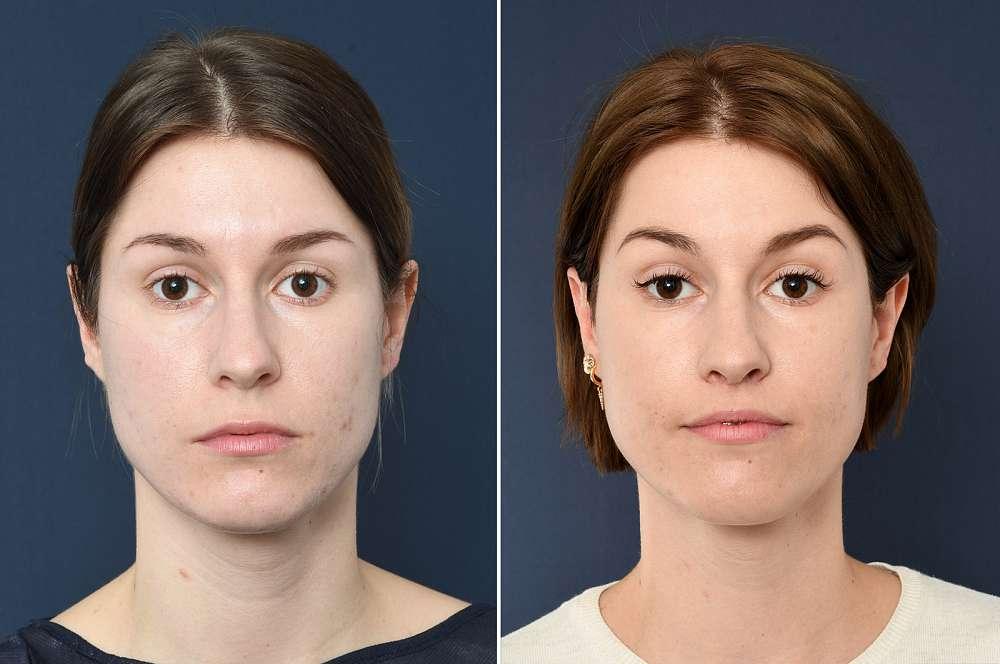 Lip lift - Facial surgery