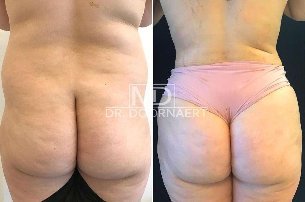 Hip and butt augmentation - Body surgery