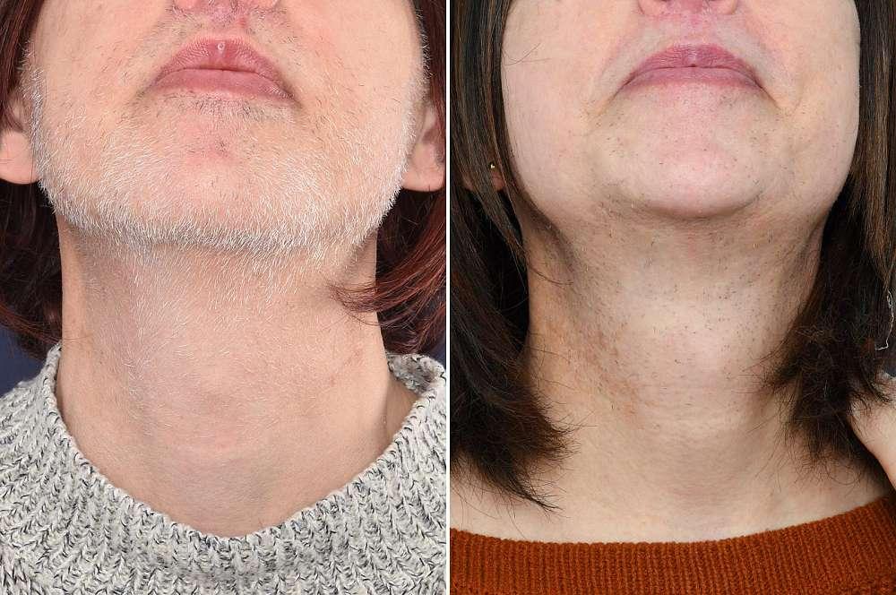 Electrolysis - Hair removal