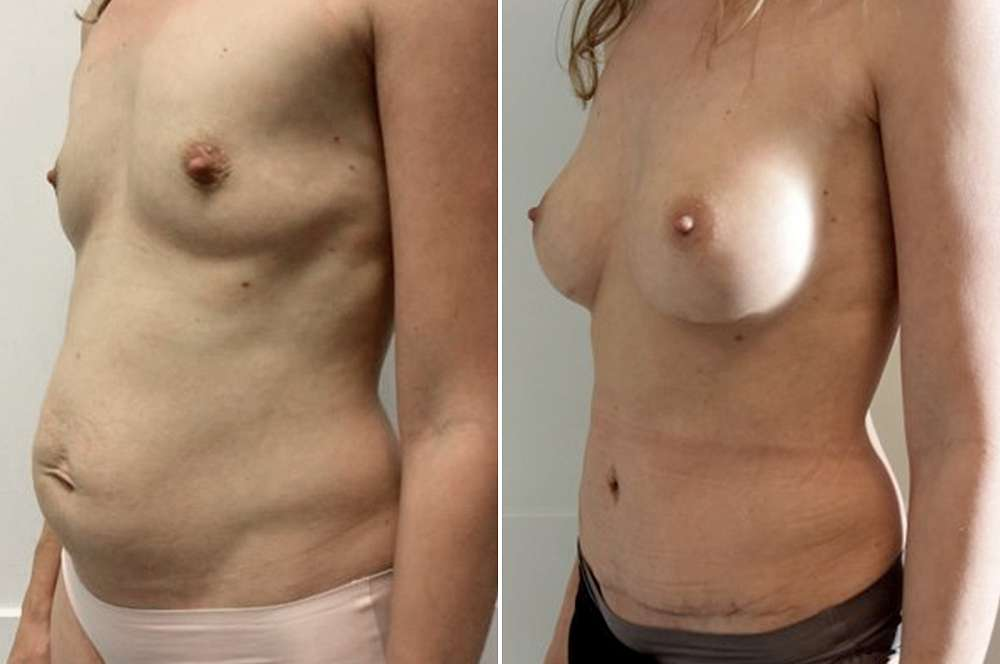Mommy makeover - Body surgery