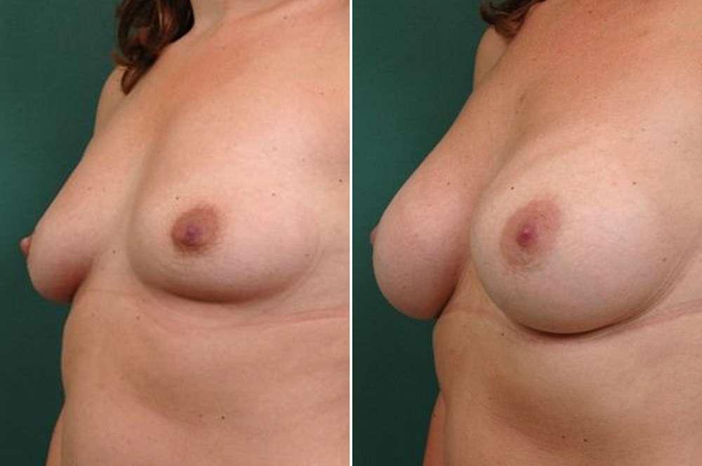 Breast augmentation - Body surgery