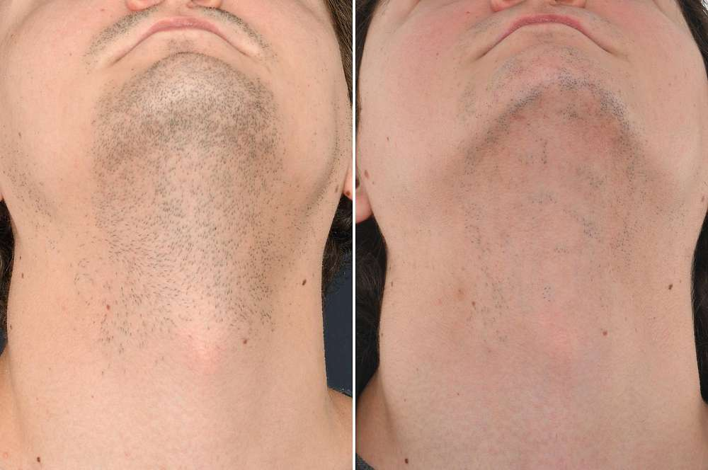 Laser hair removal - Hair removal